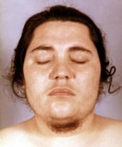 Маскулинные признаки (вирилизм)