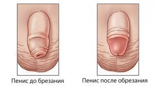 уменьшение чувствительности головки пениса